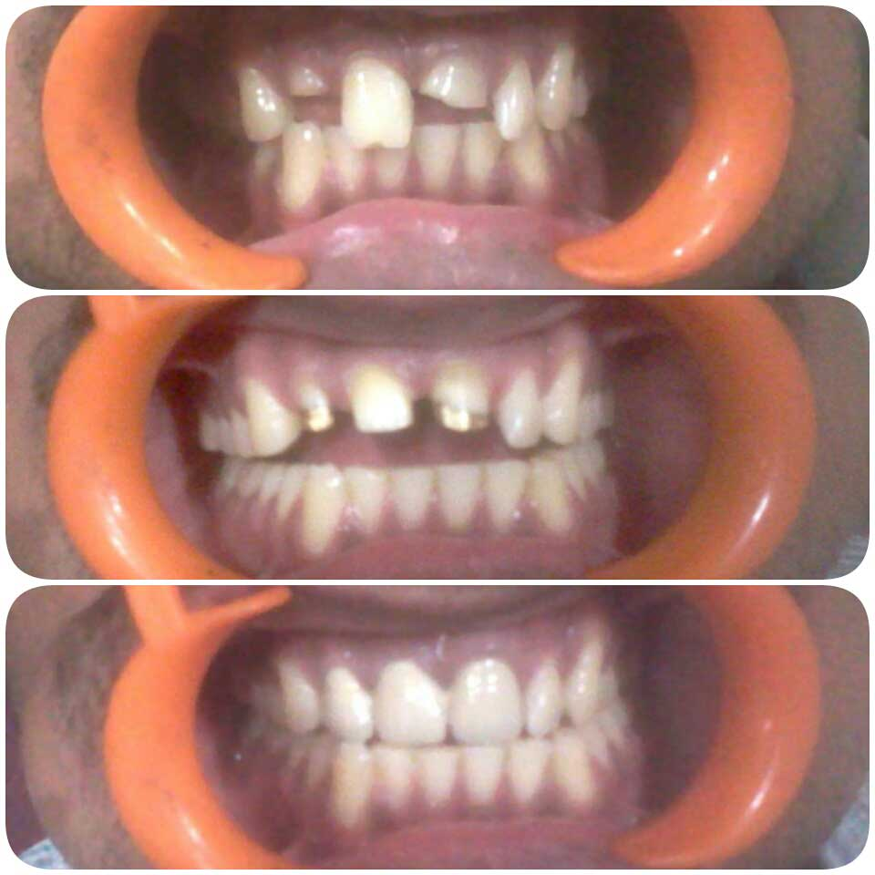 Treatment of Broken Teeth