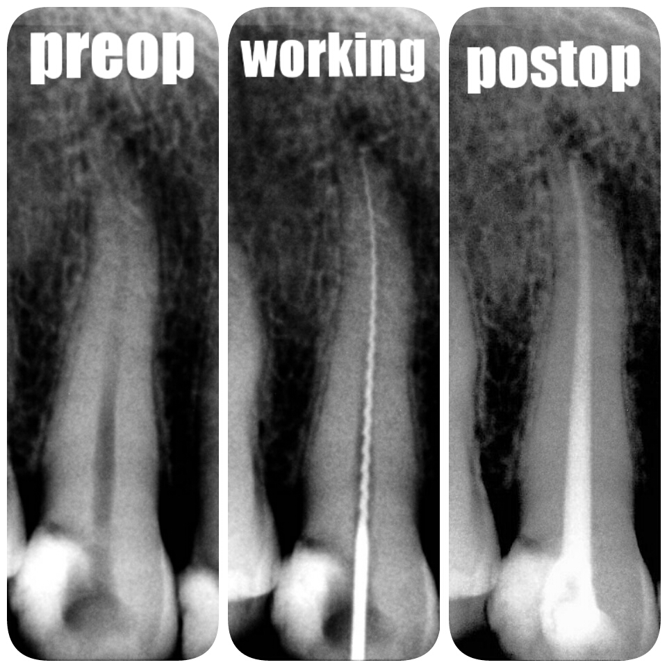 Root Canal Treatment (RTC) in Just One Hour!!!